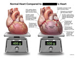 Normal heart compared to heart that is 33% bigger with artery blockage, weighed on scales.