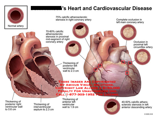 Amicus illustration of amicusmedicalheartcardiovasculardisease anterior view of heart and heart in section showing degrees of arterial blockage and wall thickening ccuart Image collections