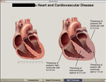 Interactive presentation comparing normal heart to thickened, diseased heart.