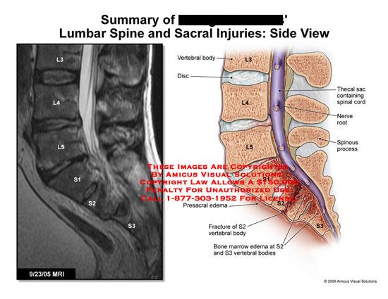 amicus,injury,lumbar,spine,sacral,presacral,edema,fracture,S2,vertebral,bone,marrow,S3