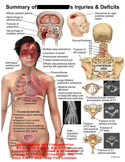 amicus,injury,cerebral,edema,ethmoid,sinus,hemorrhage,orbital,floor,fracture,maxillary,antrum,parietal,region,hematoma,cervical,scapula,lacerations,tissue,swelling,atelectasis,pulmonary,contusions,pleural,effusions,comminuted,radius,interarticular,extension,chest,tube,urinary,tract,infections,thigh,abrasion,impaired,extremity,function,trunk,control,balance,visual,perceptual,mobility,adl,status