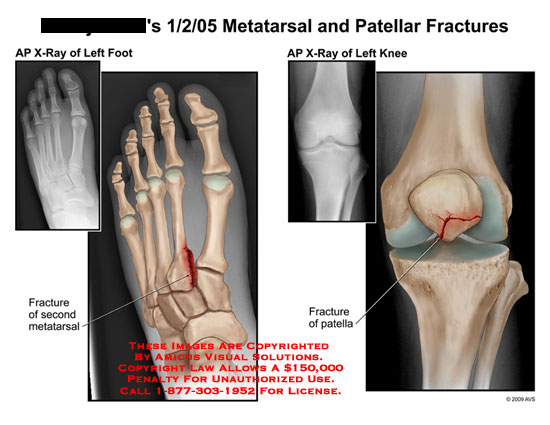 amicus,injury,metatarsal,patellar,fractures,x-ray,knee,foot