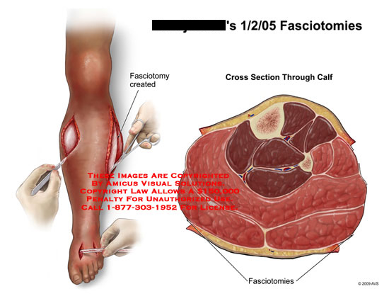 amicus,surgery,fasciotomies,fasciotomy,leg,calf,muscle