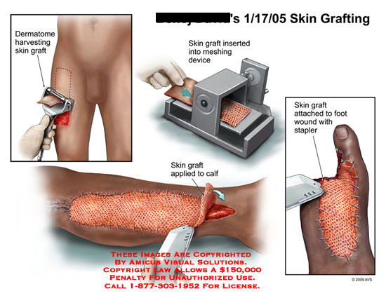 amicus,surgery,skin,grafting,dermatome,harvesting,meshing,device,calf,foot,wound,stapler