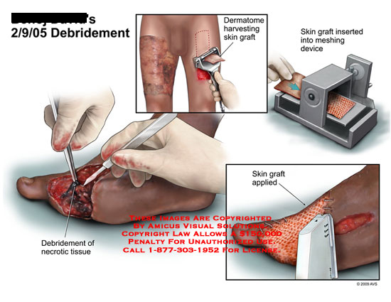 amicus,surgery,debridement,necrotic,tissue,foot,dermatome,harvesting,skin,graft,meshing,device,applied