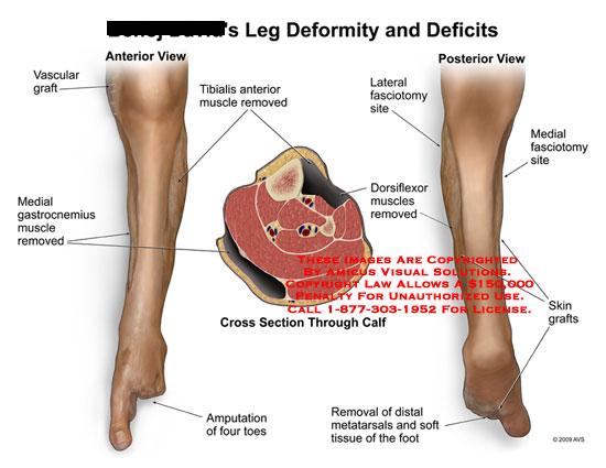 amicus,injury,leg,deformity,deficits,vascular,graft,medial,gastrocnemius,muscle,removed,tibialis,amputation,toes,dorsiflexor,fasciotomy,skin,distal,metatarsals,tissue,foot