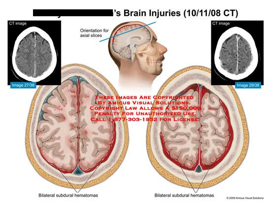 amicus,injury,brain,ct,bilateral,subdural,hematoma