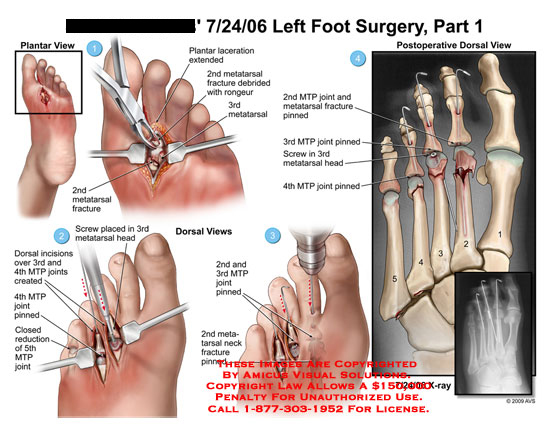 amicus,surgery,foot,plantar,laceration,extended,metatarsal,fracture,debrided,rongeur,screw,incisions,joint,pinned,closed,reduction