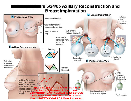 amicus,surgery,axillary,reconstruction,breast,implantation,mastectomy,scars,expander,volume,increased,myocutaneous,flap,distortion,fold,adhesions,z-plasty,z-plasties,release,skin,underlying,muscle,scar,tissue,removed,muscular,pockets,intradermal,Layers