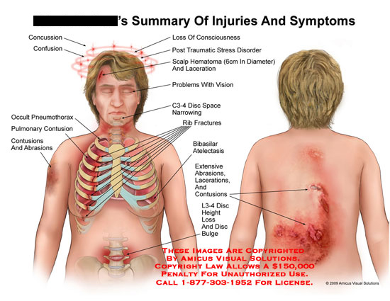amicus,injury,concussion,consciousness,scalp,hematoma,laceration,vision,C3-4,disc,space,narrowing,occult,pneumothorax,pulmonary,contusions,abrasions,rib,fractures,bibasilar,atelectasis,height,loss,bulge