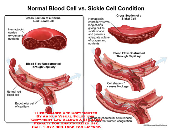 Normal Blood Cell Vs Sickle Cell Condition