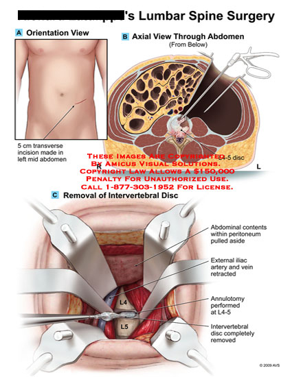 amicus,surgery,lumbar,spine,l4-5,disc,abdominal,contents,peritoneum,moved,iliac,artery,vein,retracted,annulotomy,intevertebral,removed