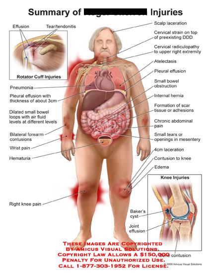 amicus,injury,summary,rotator,cuff,effusion,tear,tendonitis,scalp,laceration,cervical,strain,radiculopathy,atelectasis,pleural,bowel,obstruction,hernia,scar,tissue,adhesions,abdominal,pain,tears,mesentery,knee,contusion,edema,baker