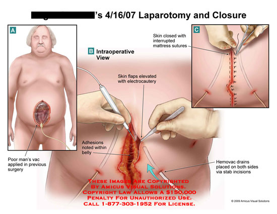 amicus,surgery,laparotomy,closure,poor,man