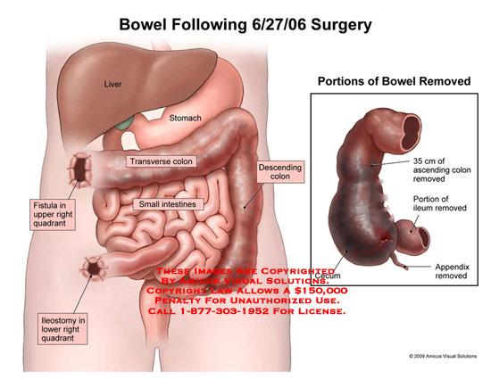 Feel Stool In Abdomen Bowel Cancer Symptoms And Treatment
