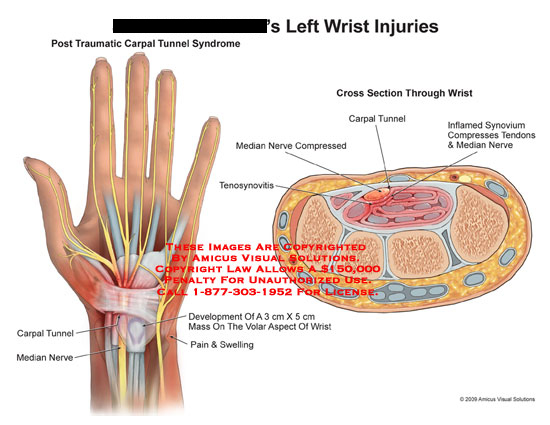 amicus,injury,wrist,post,traumatic,carpal,tunnel,syndrome,median,nerve,pain,swelling,mass,development,volar,aspect,tenosynovitis,compressed,inflamed,synovium,tendons