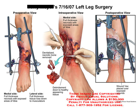 amicus,surgery,leg,full,thickness,necrosis,exposed,areas,tibia,tissue,loss,musculature,devitalized,necrotic,bone,removed,debridement,healthy,wound,vac
