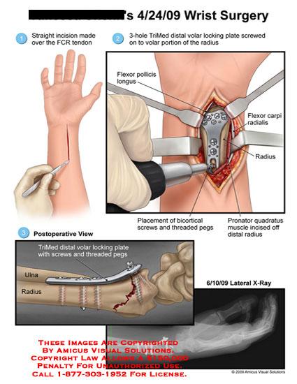 amicus,surgery,wrist,flexor,carpi,radialis,tendon,pollicis,longus,radius,trimed,distal,volar,locking,plate,bicortical,screws,threaded,pegs,pronator,quadratus,muscle,incised,x-ray
