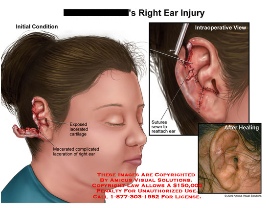 Right ear injury ccuart Image collections