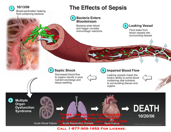 amicus,injury,sepsis,effects,bowel,perforation,leaking,fluid,bacteria,bloodstream,trigger,immunologic,reactions,vessel,surrounding,tissues,septic,shock,decreased,flow,organs,poor,nutrient,exchange,swelling,impaired,ability,pump,acute,renal,failure,respiratory,distress,heart,failure