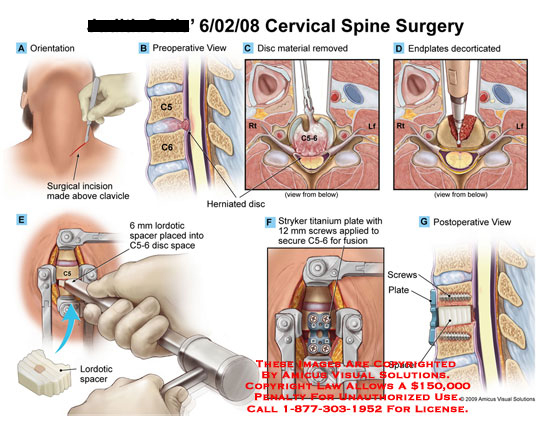 amicus,surgery,cervical,spine,incision,above,clavicle,herniated,disc,material,removed,endplates,decorticated,lordotic,spacer,placed,c5-6,stryker,titanium,plate,screws,applied,scure,fusion