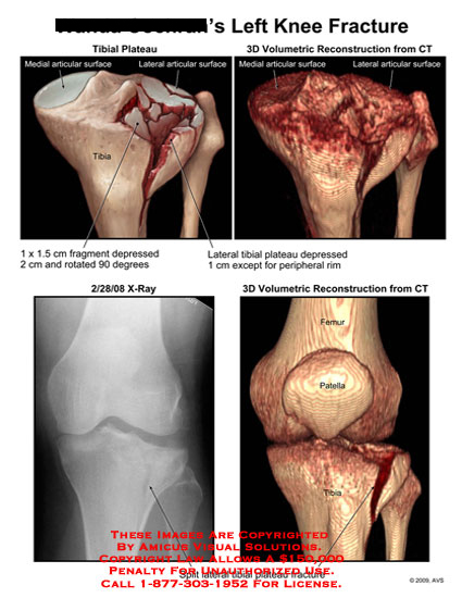 amicus,injury,knee,fracture,tibial,plateau,fragment,depressed,rotated,ct,reconstruction,split,lateral,x-ray