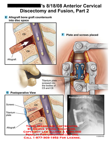 amicus,surgery,cervical,discectomy,fusion,c5-6,allograft,bone,graft,countersunk,space,plate,screws,titanium,x-ray