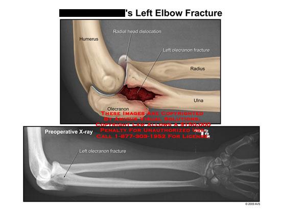 amicus,injury,elbow,fracture,radial,head,dislocation,olecranon,humerus,radius,ulna