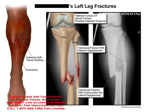 amicus,injury,leg,fractures,flattened,contour,lateral,condyle,impaction,transverse,posterior,displacement,comminution,extensive,soft,tissue,swelling,contusions,x-ray