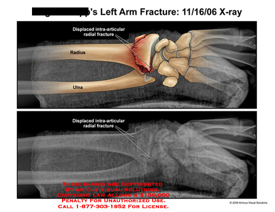 amicus,injury,arm,fracture,displaced,intra-articular,radial,radius,ulna,x-ray