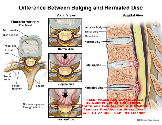 spinal disc bulge