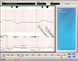 Interactive digitized fetal monitor strips.