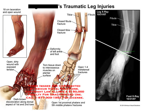 amicus,injury,leg,xray,laceration,open,wound,dirty,exposed,tendon,brown,discoloration,along,dorsal,aspect,1st,2nd,toes,torn,tissue,interosseous,muscles,ankle,foot,deformity,metatarsal,fractures,proximal,phalanx