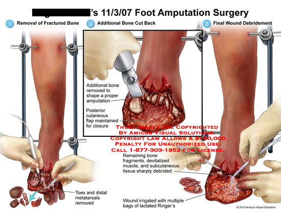 amicus,surgery,foot,amputation,removal,fractured,bone,toes,metatarsals,removed,addition,cut,back,shape,proper,cutaneous,flap,maintained,closure,remaining,fragments,devitalized,muscle,subcutaneous,tissue,sharply,debrided,wound,irrigated,multiple,bags,lactated,ringers