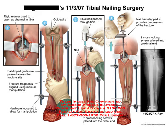 amicus,surgery,tibial,nailing,rigid,reamer,open,channel,guidewire,ball-tipped,passed,fracture,site,fragments,aligned,manual,manipulation,backslapped,compression,cross,locking,screws,end,xray