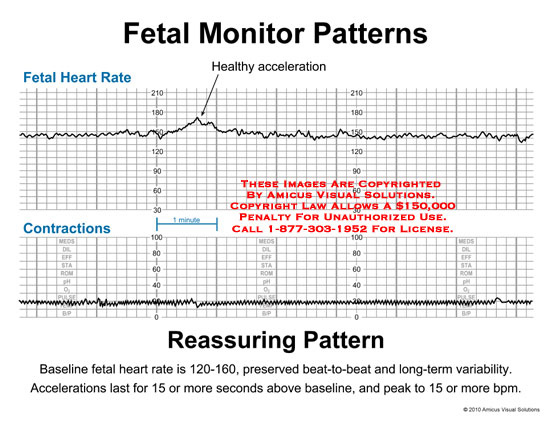 amicus,chart,fetal,monitor,heart,rate,contractions,healthy,acceleration,reassuring,patterns,baseline,preserved,beat-to-beat,long-term,variability,last,seconds,above,peak,more,bpm