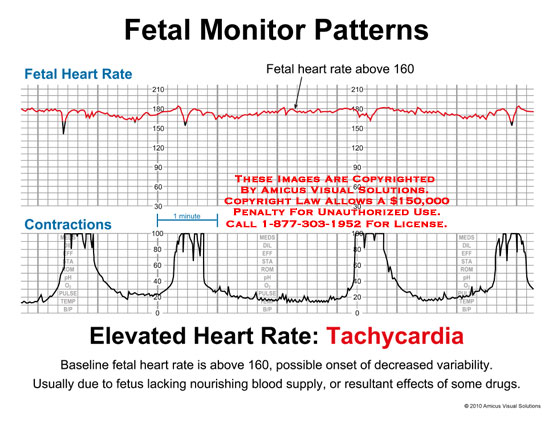 amicus,chart,fetal,monitor,heart,rate,contractions,elevated,tachycardia,baseline,above,possible,onset,decreased,variability,due,fetus,lacking,nourishing,blood,supply,resultant,effects,drugs