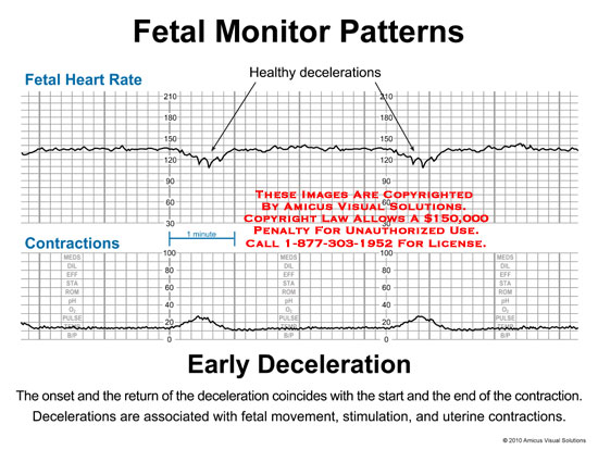 amicus,chart,fetal,monitor,heart,rate,contractions,healthy,decelerations,early,onset,return,coincides,start,end,associated,movement,stimulation,uterine