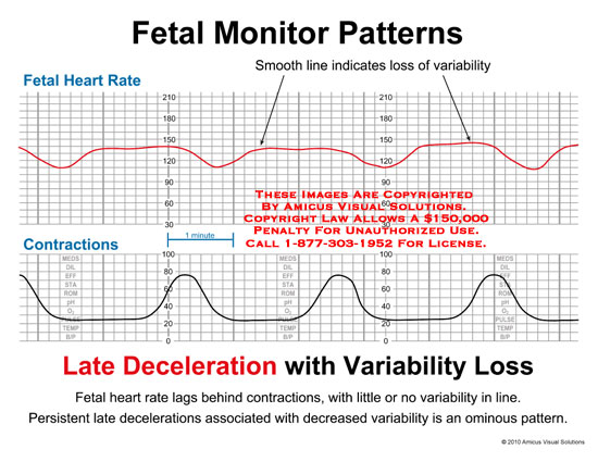 amicus,chart,fetal,monitor,heart,rate,contractions,late,deceleration,variability,loss,smooth,line,indicates,lags,behind,little,no,persistent,late,decelerations,associated,decreased,ominous,pattern