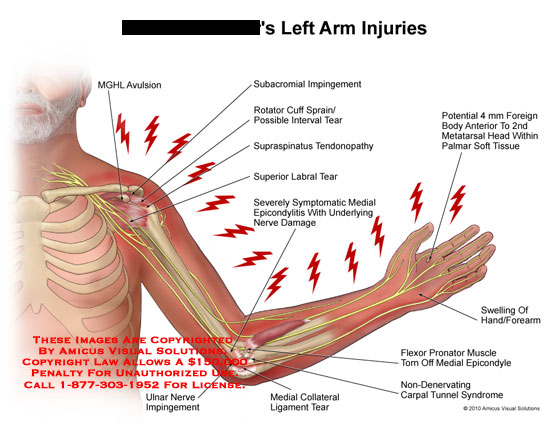 Amicus Illustration Of Amicus Injury Arm Mghl Avulsion