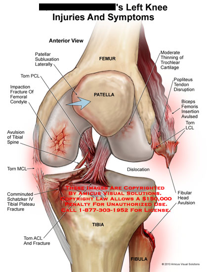 amicus,injury,knee,symptoms,femur,patella,tibia,patellar,subluxation,torn,pcl,impaction,fracture,femoral,condyle,avulsion,tibial,spine,mcl,comminuted,shatzker,plateau,fibular,head,avulsion,lcl,biceps,femoris,insertion,avulsed,popliteus,tendon,disruption,thinning,trochlear,cartilage