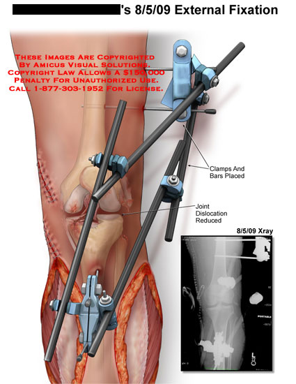 amicus,surgery,leg,external,fixation,xray,clamps,bars,placed,joint,dislocation,reduced