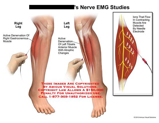 amicus,medical,nerve,emg,studies,active,denervation,gastrocnemius,muscle,tibialis,atrophic,changes,ions,flow,contracting,detected,needle,electrode