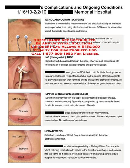 amicus,medical,complications,ongoing,conditions,echocardiogram,ecg,ekg,ng,nasogastric,tube,upper,gi,gastrointestinal,bleed,hematemesis