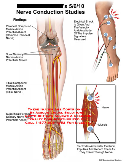 amicus,medical,nerve,conduction,studies,leg,electrical,shock,given,velocity,amplitude,impulse,signal,measured,findings,peoneal,compound,muscle,action,potential,absent,common,sural,sensory,action,absent,tibial,compound,superficial,elctrodes,administer,impulses,record,travel,EMG,electromyography