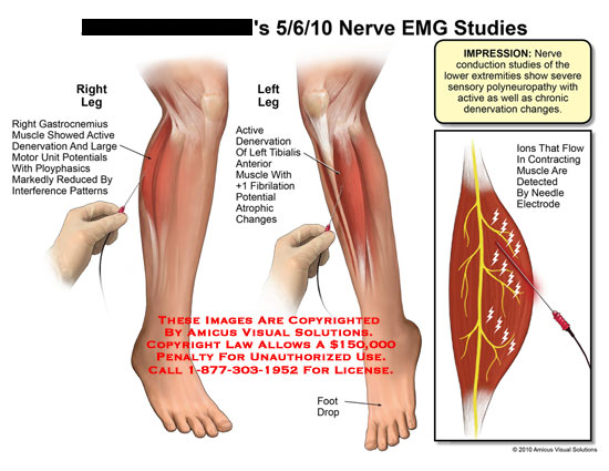 amicus,medical,nerve,emg,studies,gastrocnemius,muscle,showed,active,denervation,large,motor,unit,potentials,ployphasics,markedly,reduced,interference,patterns,tibialis,fibrillation,atrophic,changes,impression,conduction,lower,extremities,severe,sensory,polyneuropathy,active,chronic,denervation,ions,flow,contracting,detected,needle,electrode,EMG,electromyography