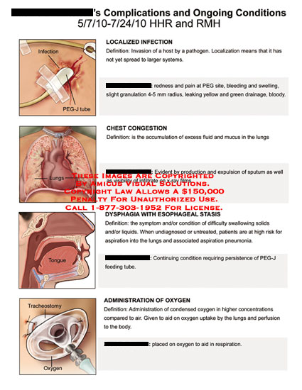 amicus,medical,complications,ongoing,conditions,localized,infection,chest,congestion,dysphagia,esophageal,stasis,administration,oxygen