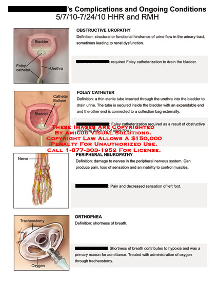 amicus,medical,complications,ongoing,conditions,obstructive,uropathy,foley,catheter,peripheral,catheter,peripheral,neuropathy,orthopnea