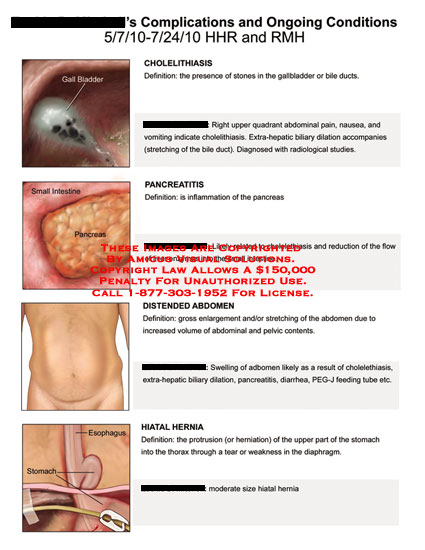 amicus,medical,complications,ongoing,conditions,cholelithiasis,pancreatitis,distended,abdomen,hiatal,hernia