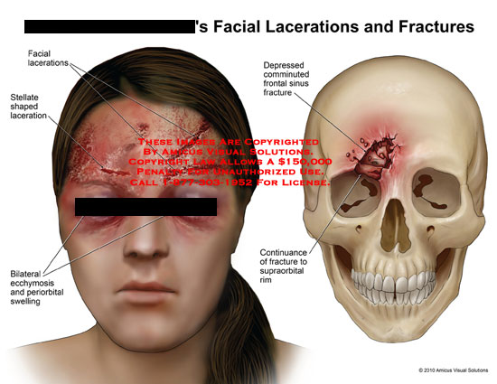 amicus,injury,face,facial,lacerations,fractures,stellate,shaped,ecchymosis,periorbital,swelling,depressed,comminuted,frontal,sinus,continuance,supraorbital,rim